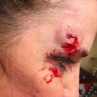 Sarah-Palin-shows-a-head-injury-she-received-while-rock-running-via-Facebook-800x430